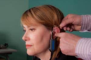applicazione metodo donati su apparecchi acustici